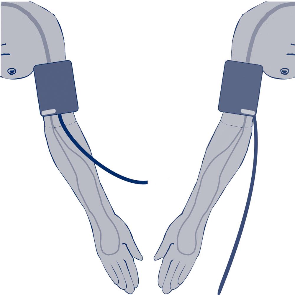 Blutdruckmanschette - höchste Messgenauigkeit | visomat ...