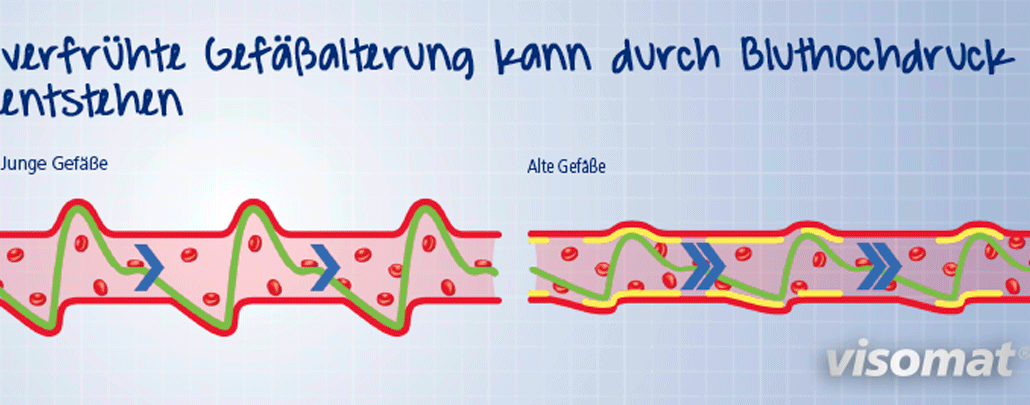 Die Grafik zeigt junge und alte Blutgefäße im Vergleich