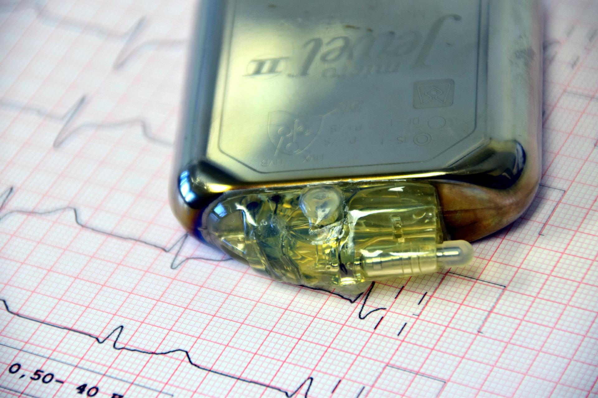 Ein Herzschrittmacher ist ein medizinisches Gerät zur elektrischen Stimulation des Herzmuskels bei einer Bradykardie. Er besteht aus einem Generator und im Herzen verankerten Sonden.