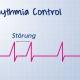 Die Grafik zeigt eine unregelmäßige Abfolge des normalen Herzschlags. Die Störungen sind eingezeichnet. Die Herzrhythmusstörungen können bei der Blutdruckmessung erkannt werden.