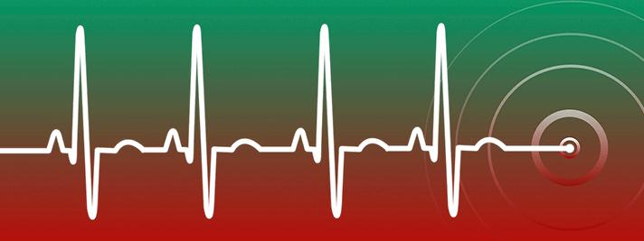Das Bild zeigt eine Herzfrequenz