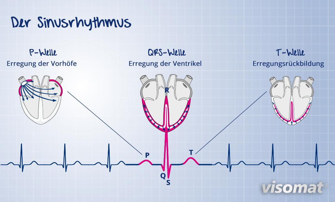 Der Sinusrhythmus im Detail.