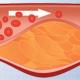 Arteriosklerose (Arterienverkalkung) verstopft die Arterien.