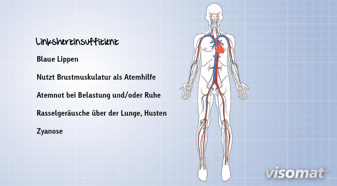 Linksherzinsuffizienz: die sichtbaren Symptome.