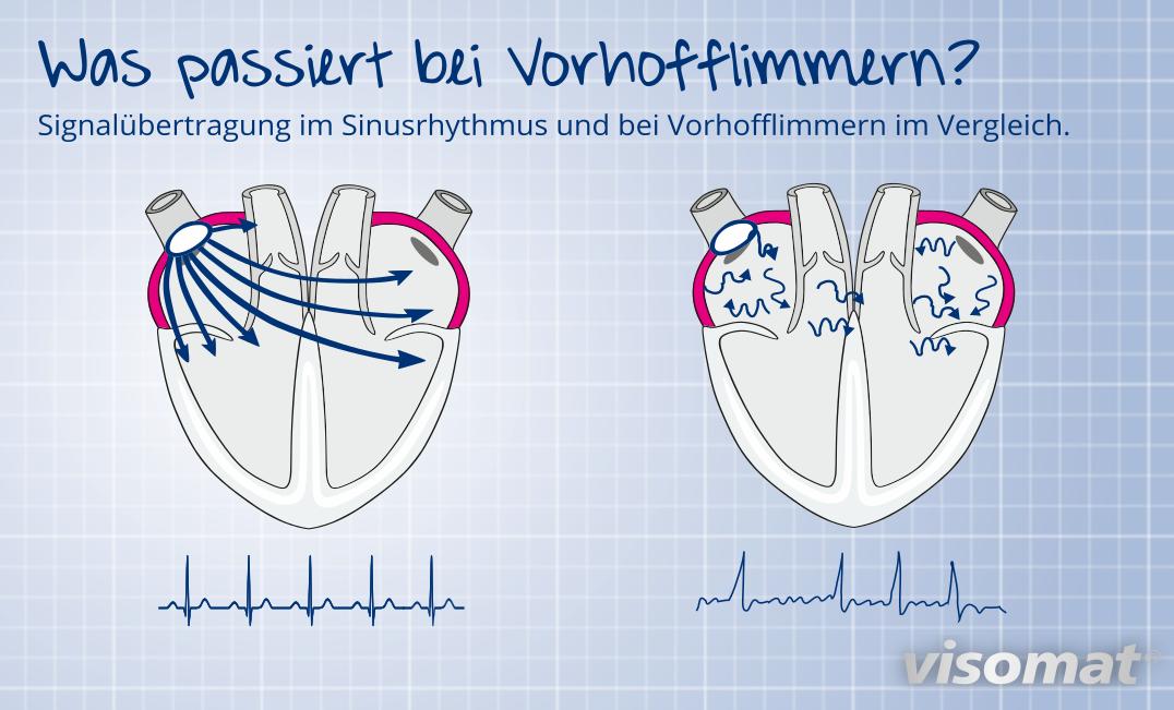 Vergleich Sinusrhythmus und Vorhofflimmern
